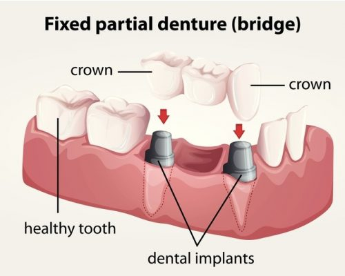 edgewater dental bridge
