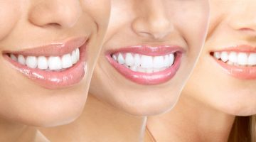 edgewater dental teeth whitening