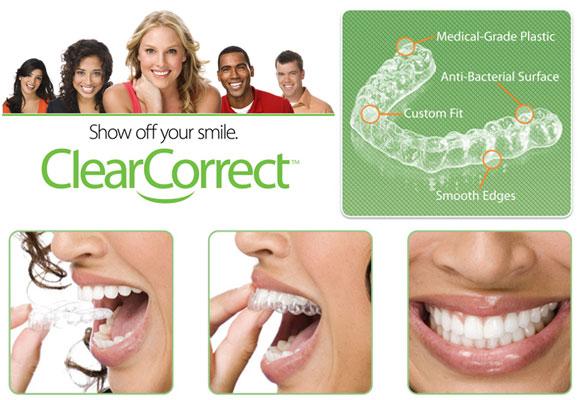 clear correct tooth alignment